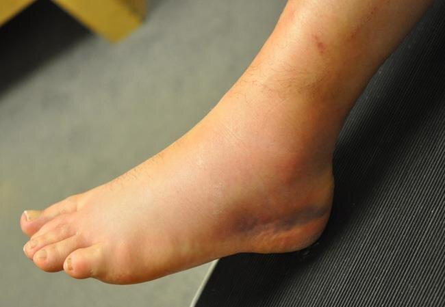 نکته بهداشتی، پیشگیری از پیچ خوردگی قوزک پا
