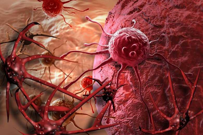 شایع ترین عوامل سرطان زا در زندگی امروز