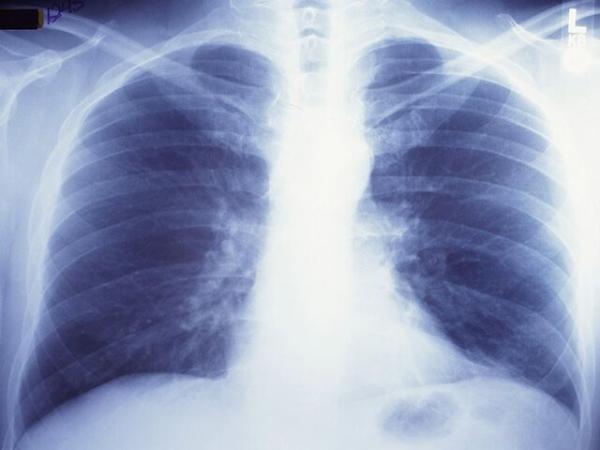 یک بیماری کشنده در کمین افراد سیگاری